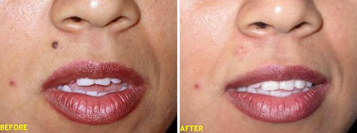 Image Gallery - Mole Removal & Skin Blemish Care | CMA Lilly Methods ...