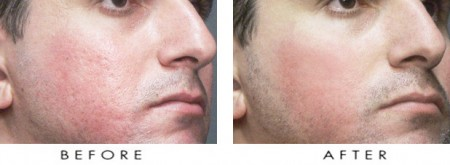 laser-treatment-for-acne-scar-before-and-after
