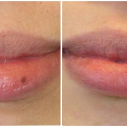 lips_before_after_700