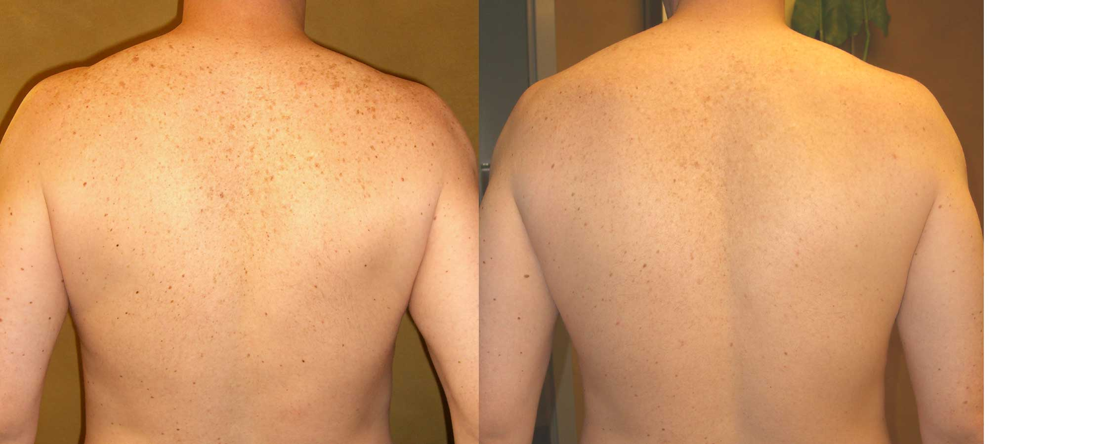 mole-removal-salt-lake-city
